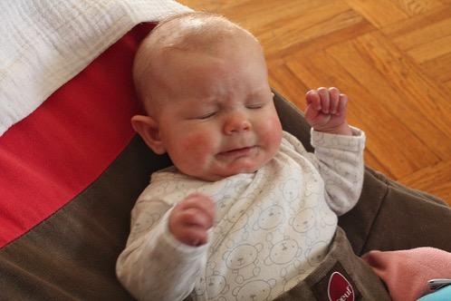 RSウイルスに赤ちゃんが感染、経過とママパパが気をつけること