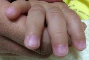 赤ちゃんのささくれ(さかむけ)の悩み※化膿まえ