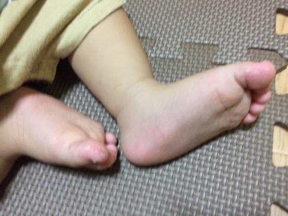 手足口病 発疹  IMG 0891