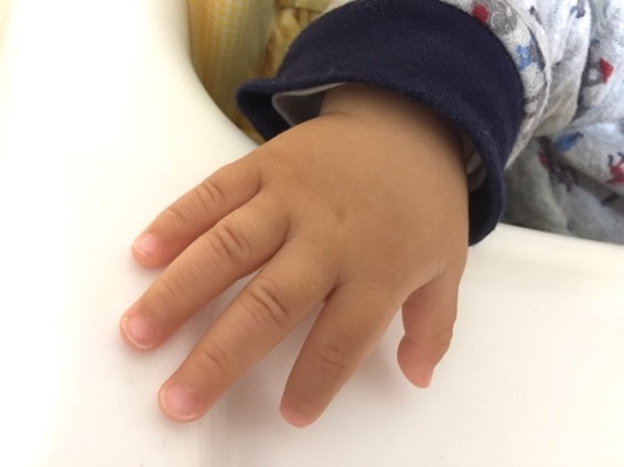 手足口病 症状 IMG 5105