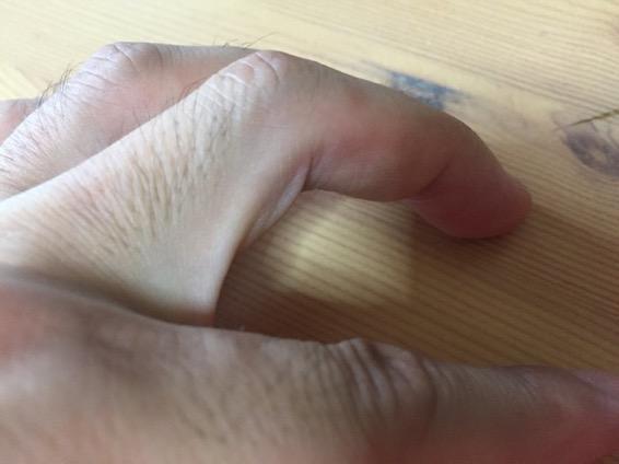手足口病 発疹  IMG 1751