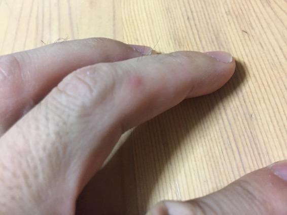 手足口病 画像 IMG 0596