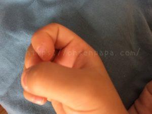 手足口病で爪が剥がれる?(ご注意:爪の経過画像あり)