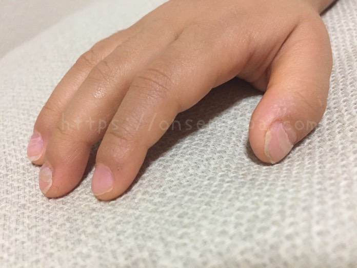 手足口病 爪 剥がれる 写真 IMG 1960