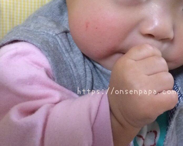 赤ちゃん 肌荒れ 指しゃぶり IMG 2523 1413