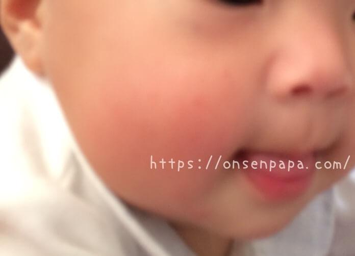 赤ちゃん 肌荒れ 指しゃぶり IMG 1713 1316